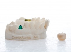 PG12_DentalModel_from_sales_case_with_single_posterior_crown